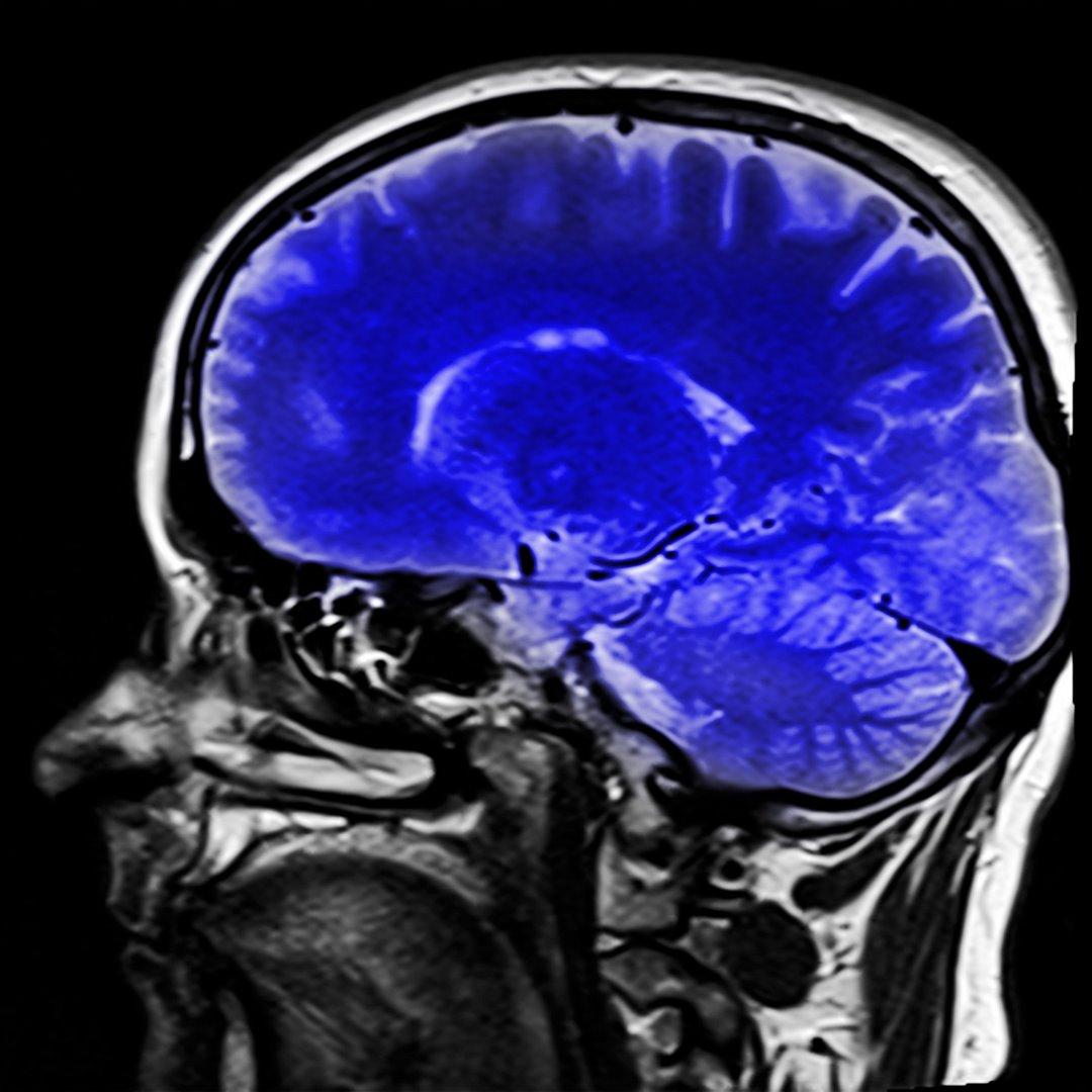 magnetická rezonancia vysetrenie